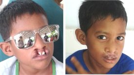 Free Cleft Operation